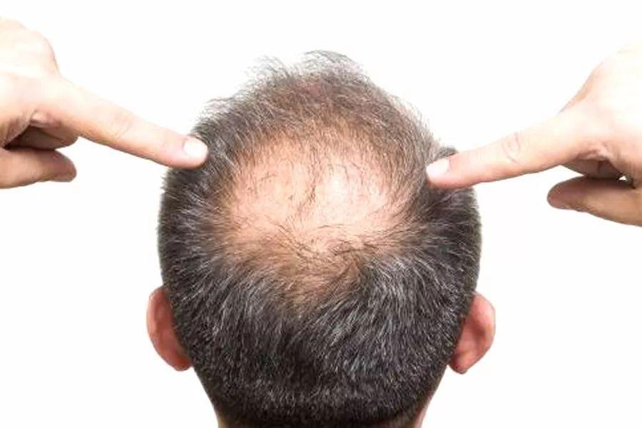 知否|吃黑芝麻能拯救脱发白发?你可能想多了
